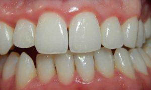 gezwollen tandvlees? Denk aan een tandvleesbehandeling