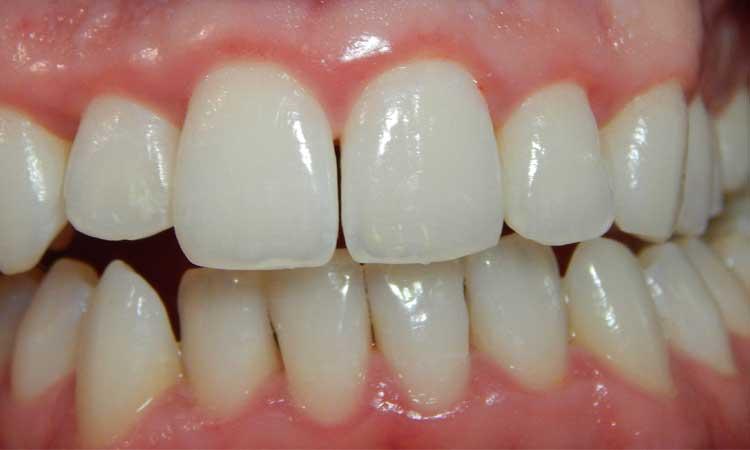 Onstoken Tandvlees? Denk aan een tandvleesbehandeling!