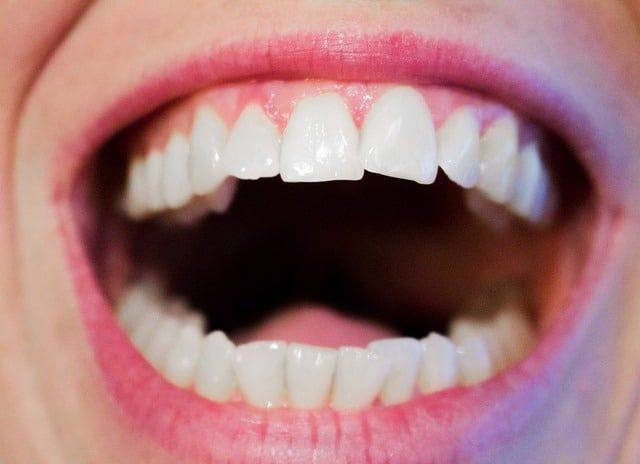 17 natuurlijke remedies bij gezwollen tandvlees