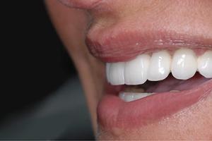 Afgebroken Tand Of Kies? Wat Meteen Te Doen