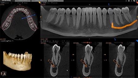 cbct-scan-3d-röntgen