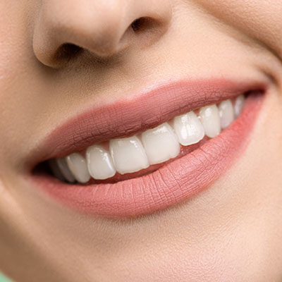 mondhygienist amsterdam, utrecht dental 365 dental cleaning amsterdam, utrecht