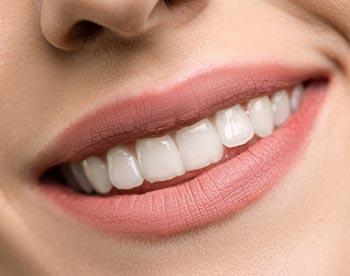 wat te doen tegen tandsteen hoe tandsteen verwijderen