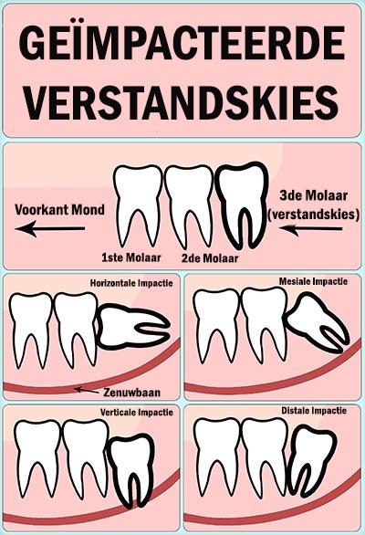 geïmpacteerde verstandskies pijn - wat te doen - dental 365 - 400px