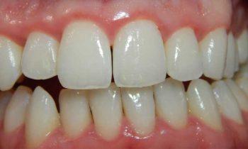 ontstoken tandvlees - lees er alles over - met tips wat te doen bij gezwollen tandvlees