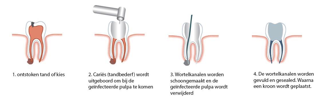 stappen bij een wortelkanaalbehandeling