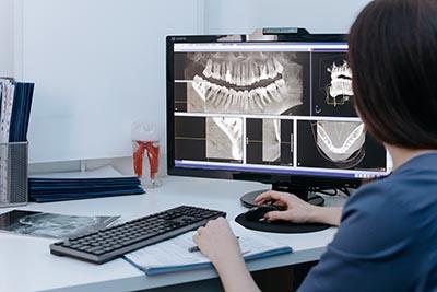 abces tandvlees oorzaken, symptomen, gevaren, behandeling - Dental365 blog1