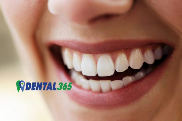 Facings Eraf Gevallen - Is het Spoed en Wat te doen - Dental365